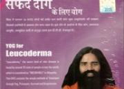 Dvd yoga for leucoderma