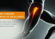 knee pain treatment los angeles