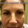 Opt for Facial Hair Removal Services at Atlanta, GA
