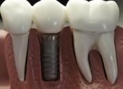 Experience safe & advanced dental implants in norcross, georgia.